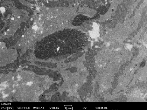 STEM image of Color Cancer cells